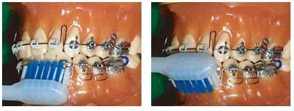 当センター推せんの電動歯ブラシによる磨き方