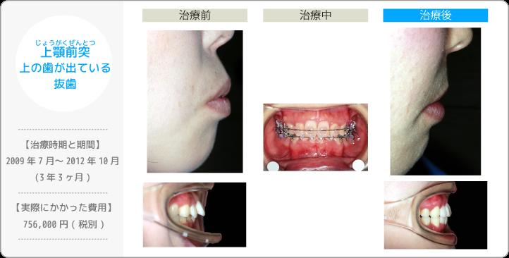 上顎前突じょうがくぜんとつ/上の歯が出ている/抜歯(歯を間引きして治療したケース)