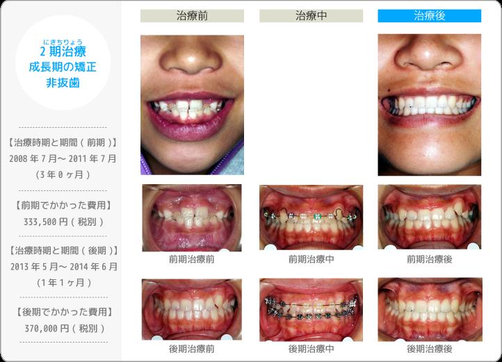 2期治療にきちりょう/前期・後期にわけた治療/非抜歯(歯を抜かずに治療したケース)