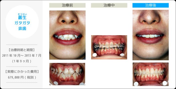 叢生そうせい/ガタガタ/抜歯(歯を間引きして治療したケース)