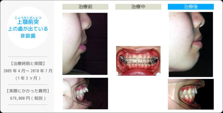 上顎前突じょうがくぜんとつ/上の歯が出ている/非抜歯(歯を抜かずに治療した)