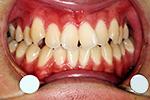 前歯のねじれ