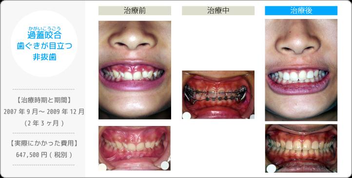 過蓋咬合かがいこうごう/歯ぐきが目立つ/非抜歯(歯を抜かずに治療したケース)