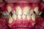両顎前突(上下の歯が出ている)