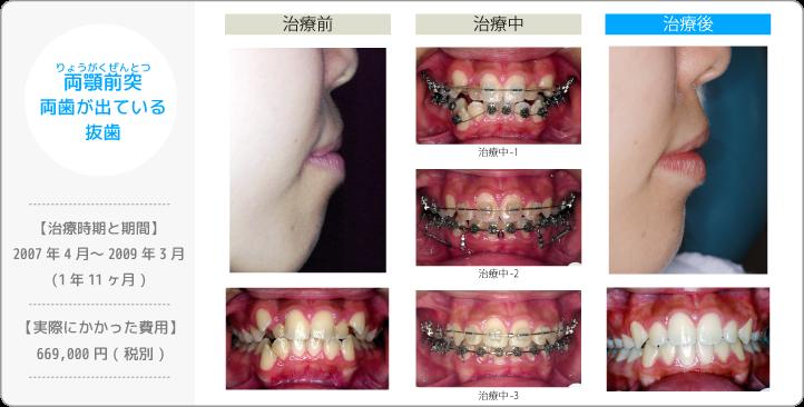 両顎前突りょうがくぜんとつ/上下の歯が出ている/抜歯(歯を間引きして治療したケース)