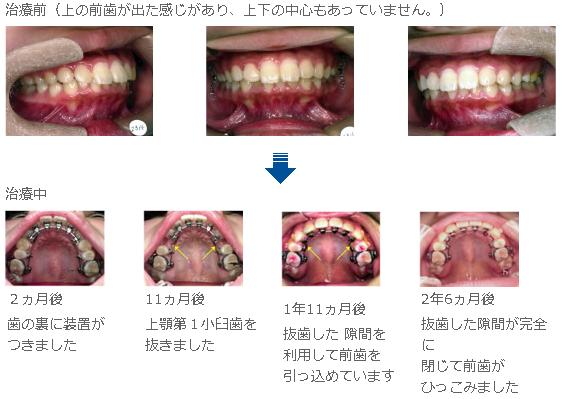 舌側矯正の治療過程