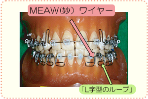 MEAW(妙)ワイヤー