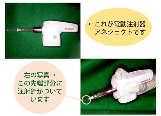 電動注射器アネジェクト