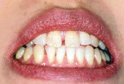 治療前の歯並び