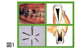 MIS(Micro Implant Screw)システム