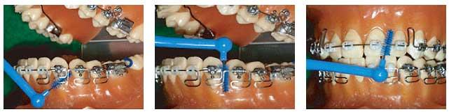 歯間ブラシによる磨き方