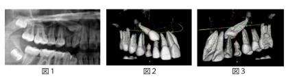 3次元CT装置