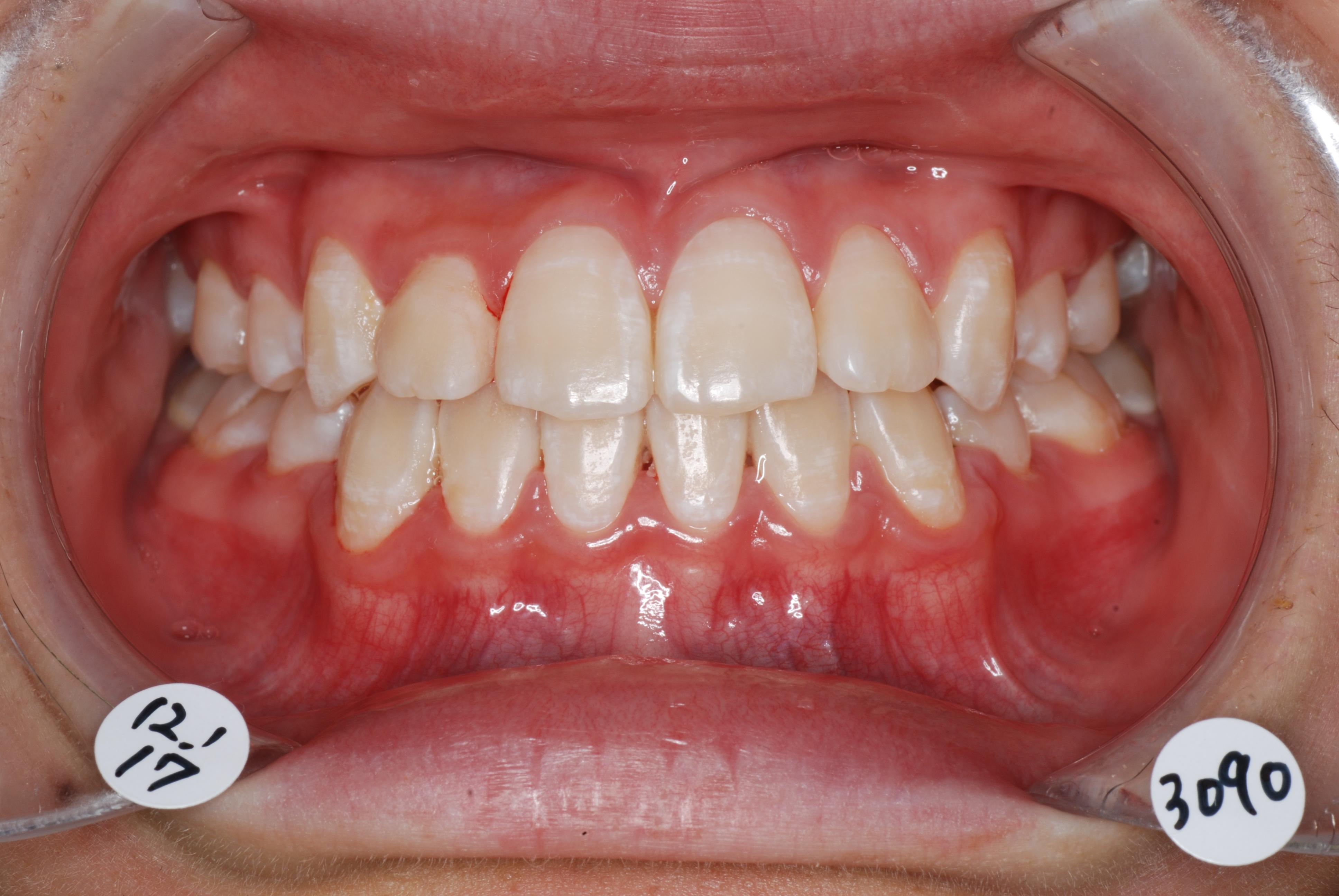 お口の写真(矯正治療後)