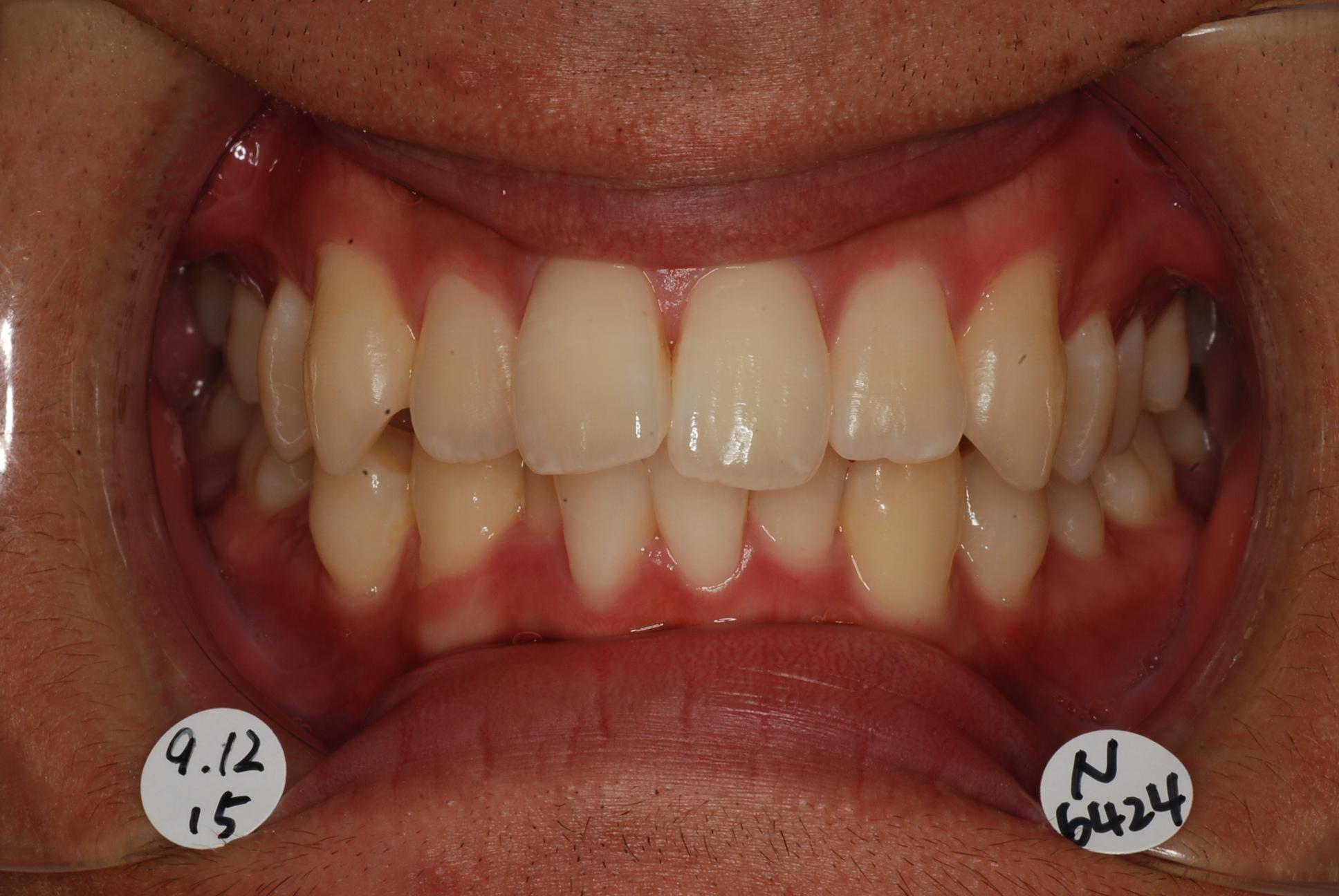 お口の写真(矯正治療前)