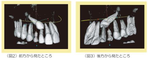 3次元CT画像