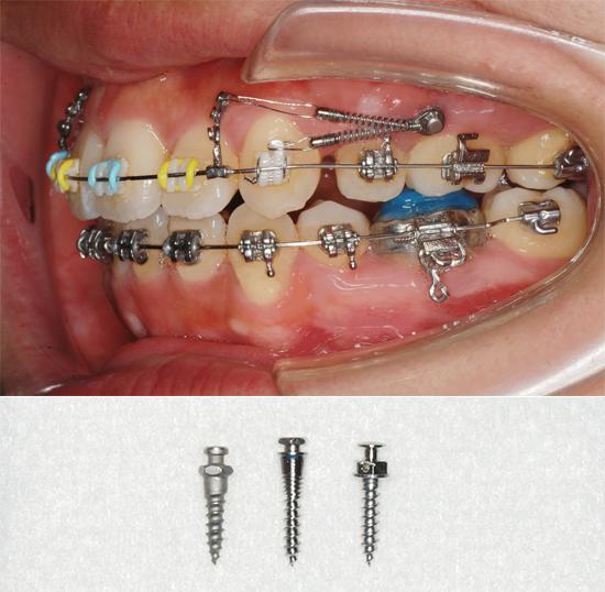 矯正用インプラント(Orthodontic Anchor Screw)