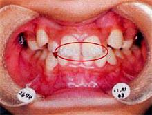 虫歯になりかけた部分