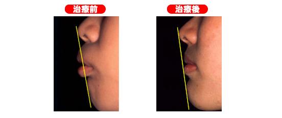 矯正治療前後の横顔の比較